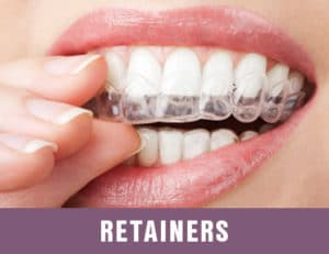 customized retainers for best repositioning