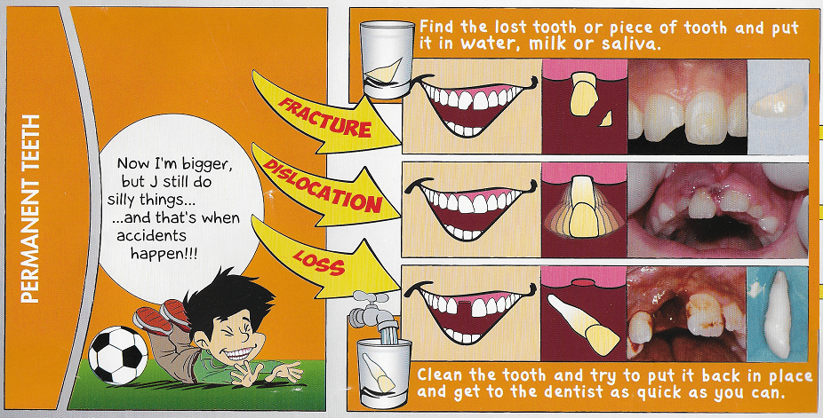permanent tooth accident