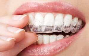 wear your retainer