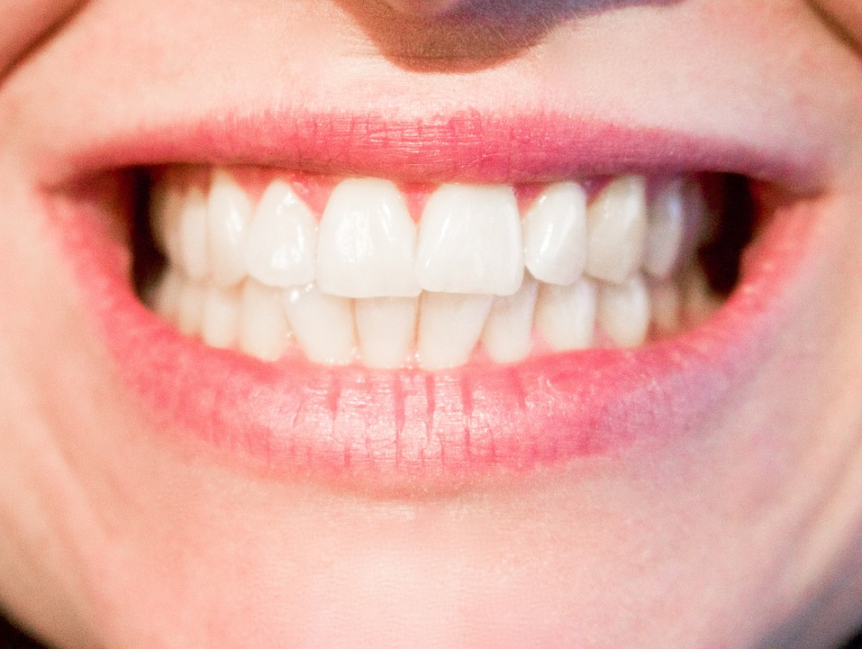 White Spots On My Teeth