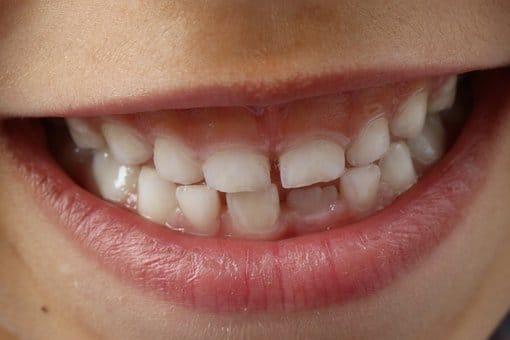 The Transition Between The Primary And Permanent Teeth!