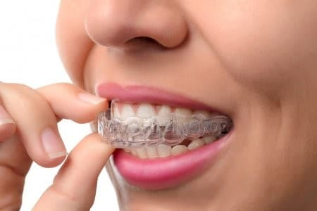 attachment-of-Invisalign