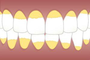 gum disease, symptoms, causes, treatments, remedies