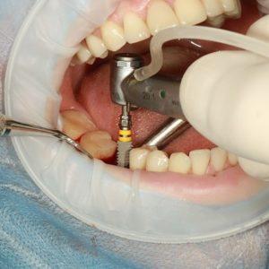 Immediate Dental Implantation