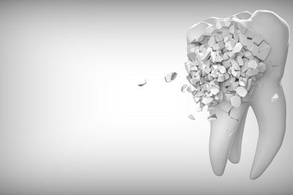 cosmetic dentist for white fillings