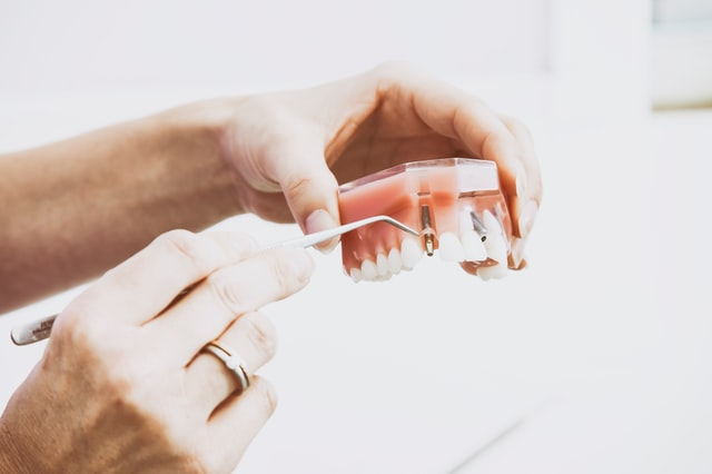 Dental-implants-for-multiple-missing-teeth